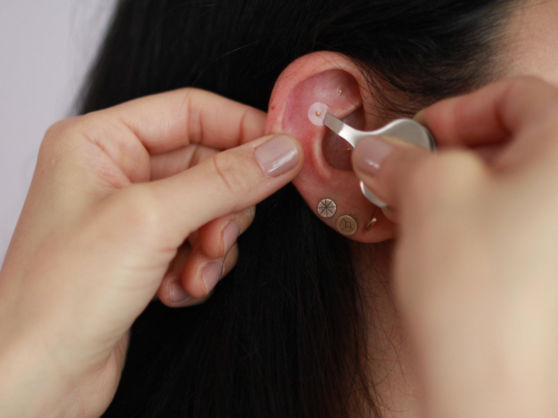 ear acupressure ear seeds.JPG