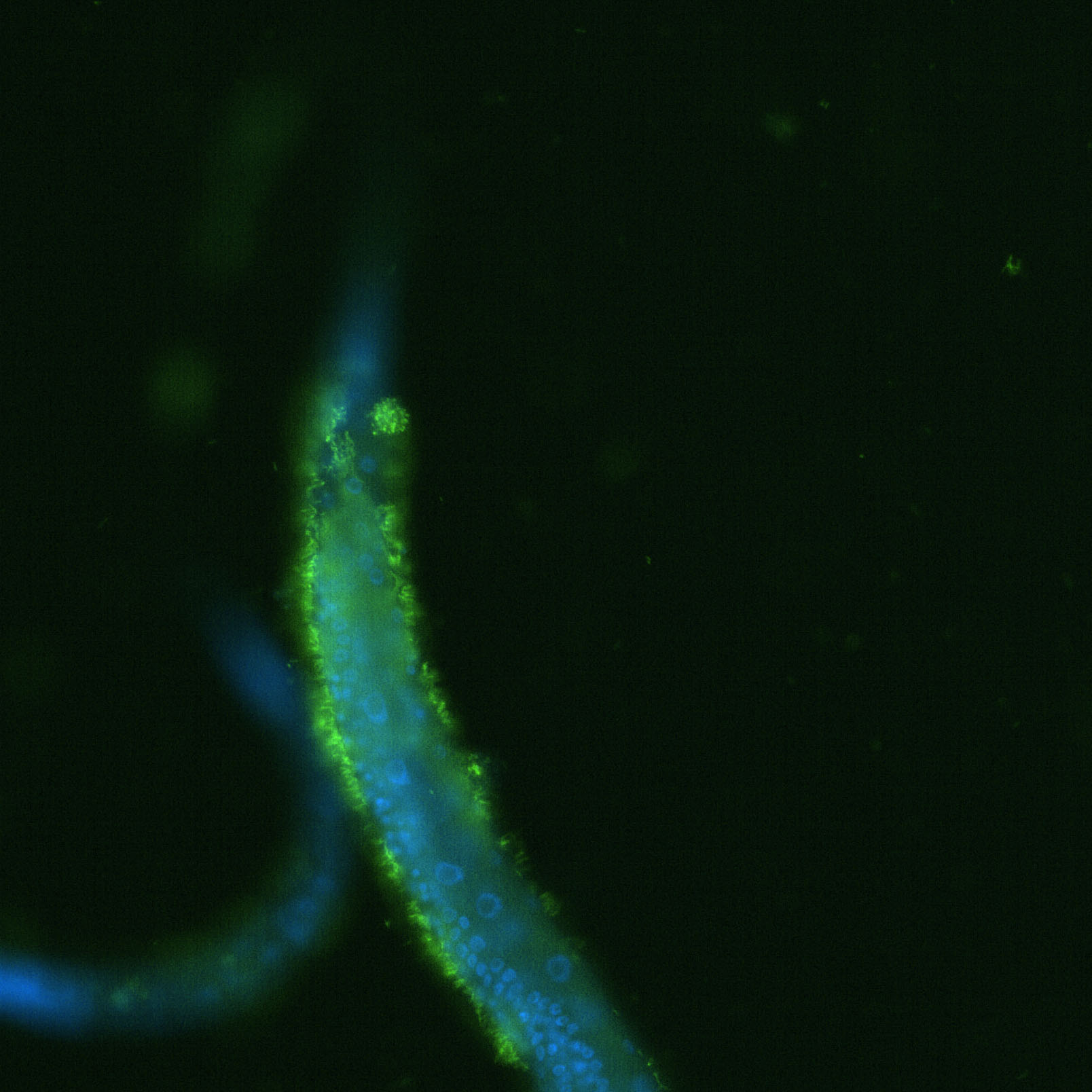 The tail end of a worm coated with bacteria (green).