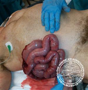 intestin.png