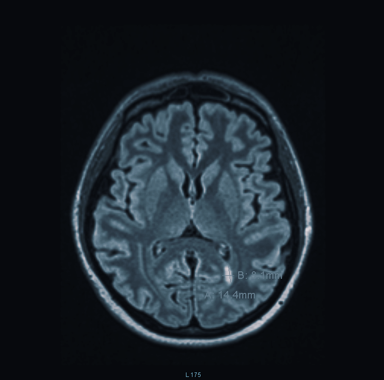 MRI image of my brain showing one of the damaged areas.