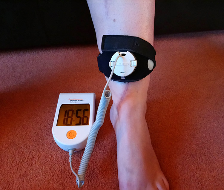 exogen-rental-bone-healing-ultrasound-lipus-treatment-uk-and-europe.jpg