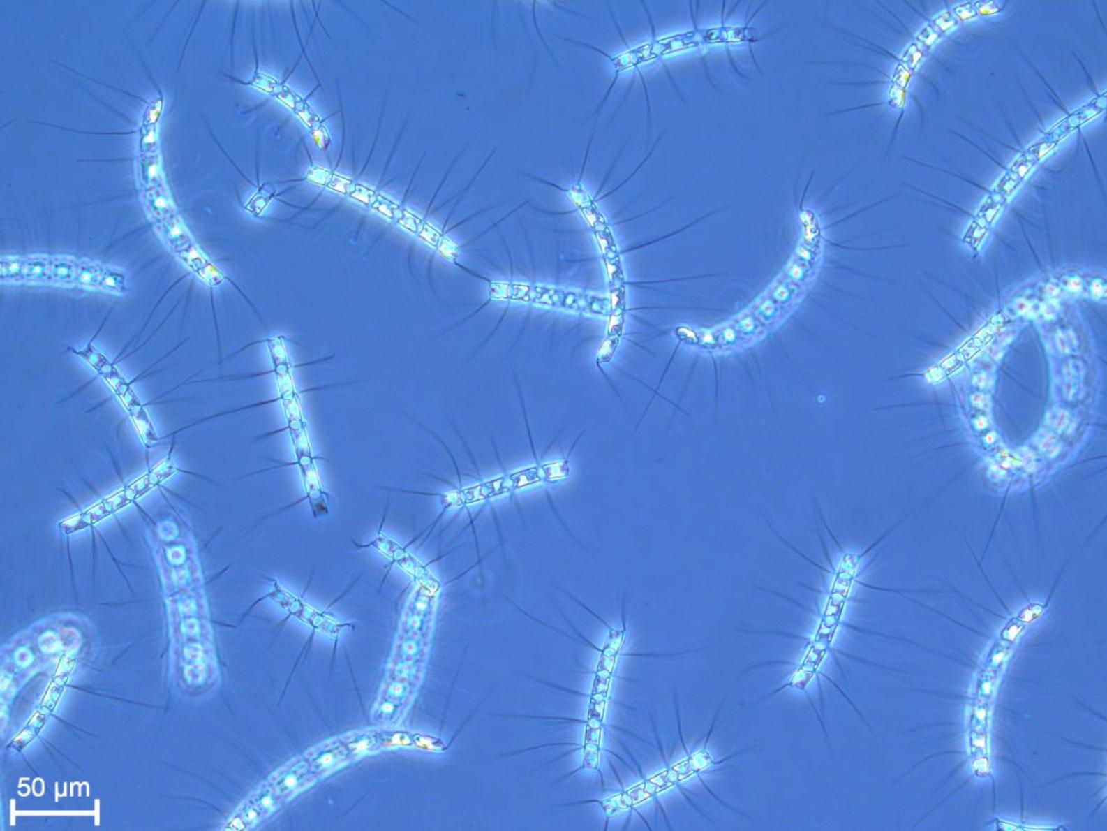Diatoms_Chaetoceros.PNG