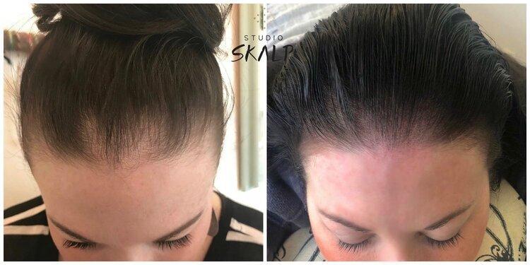scalp micropigmentation for hair loss
