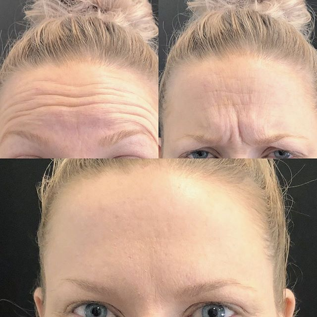 Real before-and-after results of a patients who received Botox injections at our facility.