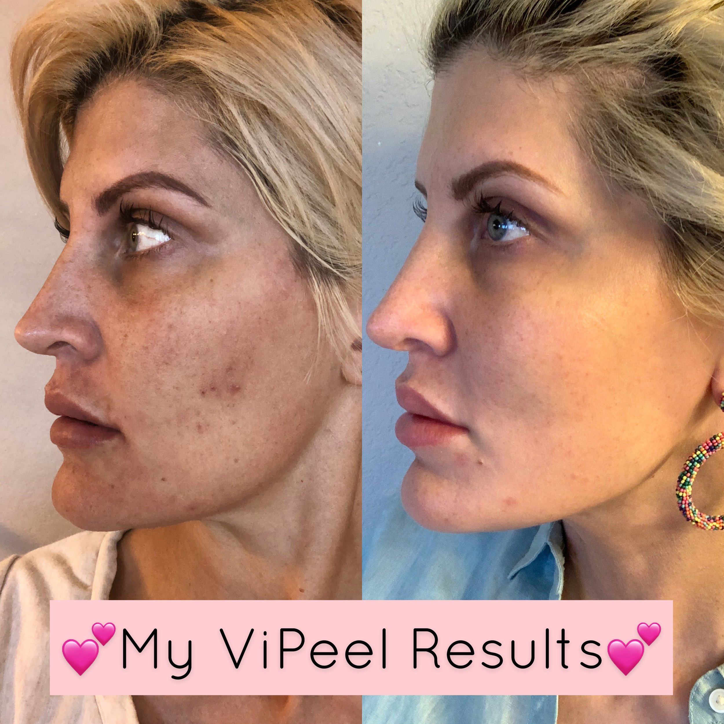 Our very own Jenny Garland's ViPeel results, before and two weeks after treatment.