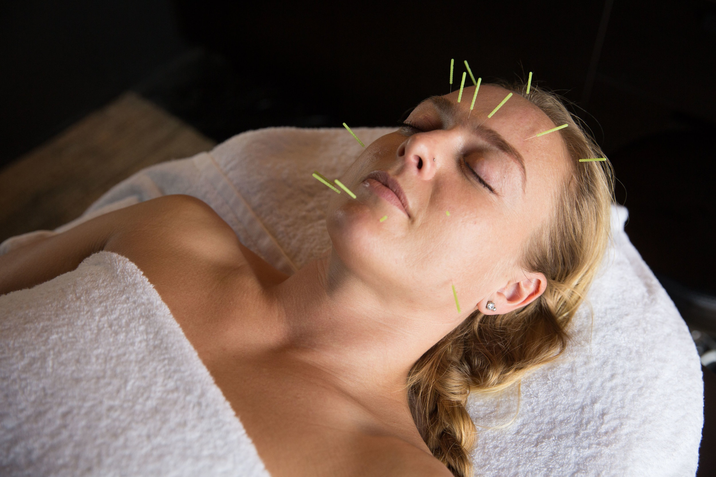 MO+ Facial Acupuncture with Yvette Forbes