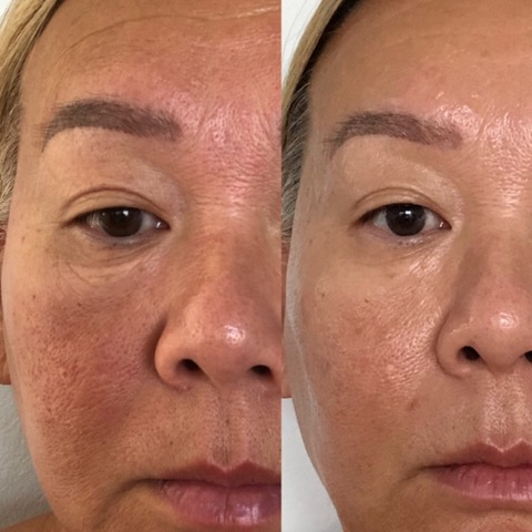 Barbara shares the results of her LED Light Therapy treatments.  The first image was taken on the 26th of February, 2019 and the second on the 29th of April, 2019. Individual results will vary.