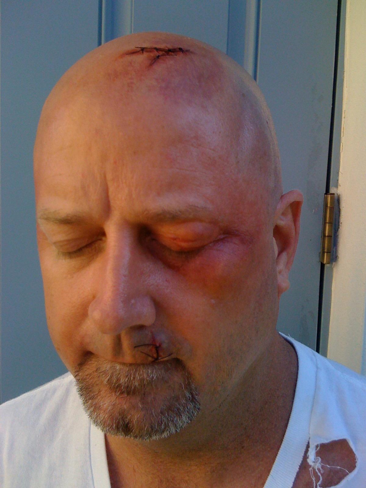 Head Wound.jpg
