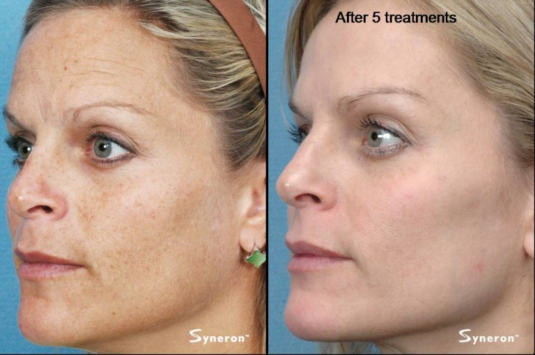 ipl-before-after1-768x510.jpg