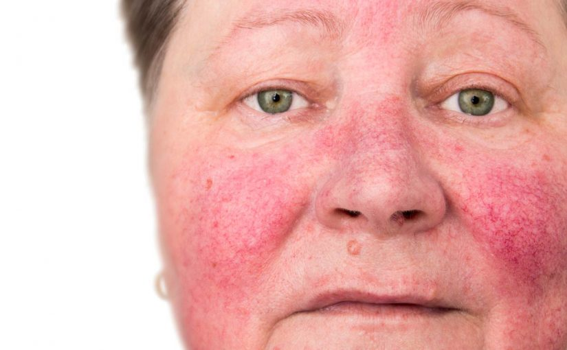 small red veins on face