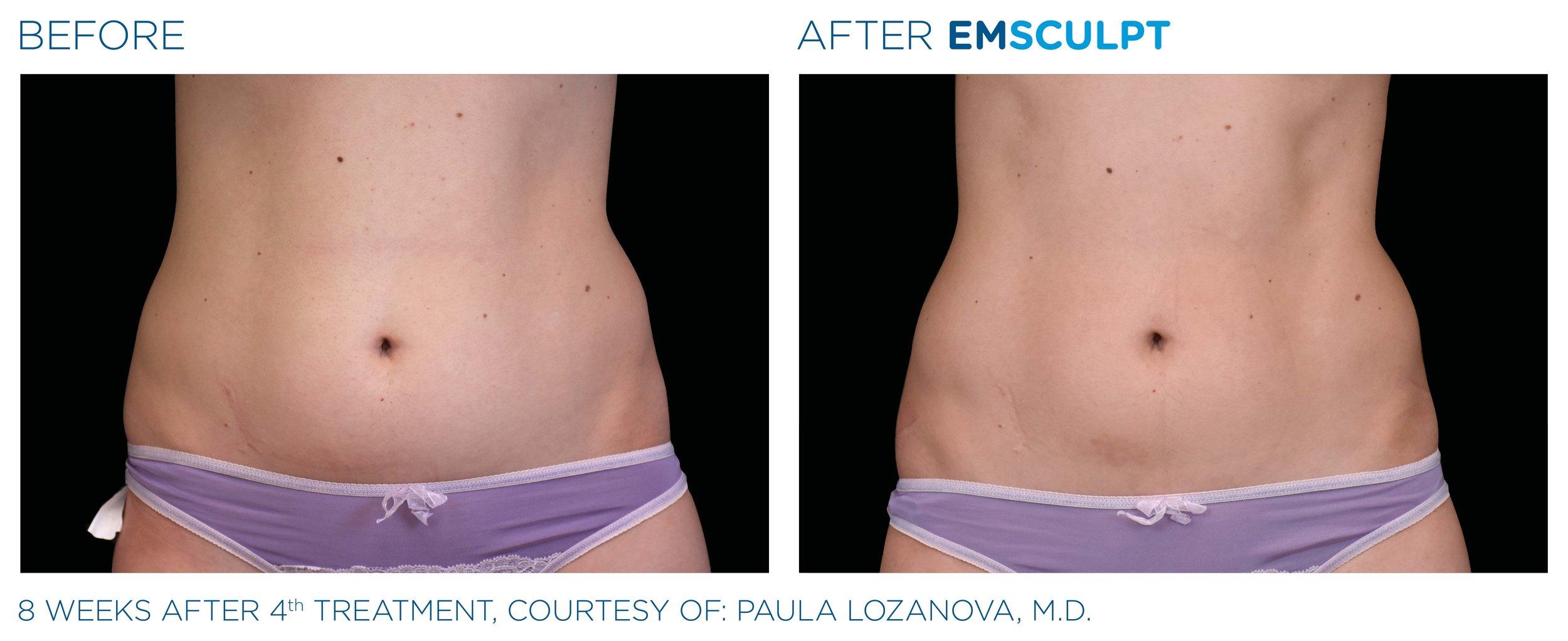 Emsculpt_PIC_Ba-card-female-abdomen-026_ENUS100.jpg