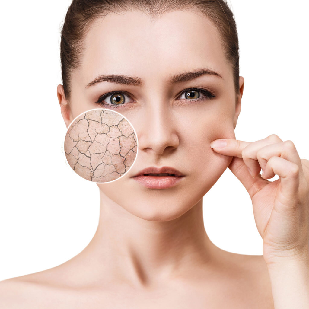 Dehydrated or Dry Skin: What is the difference? — Midwest Laser Centre