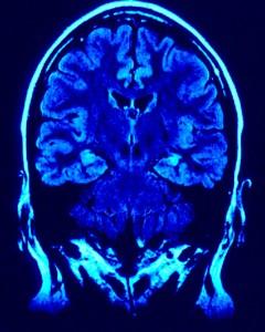 brain-240x300.jpg