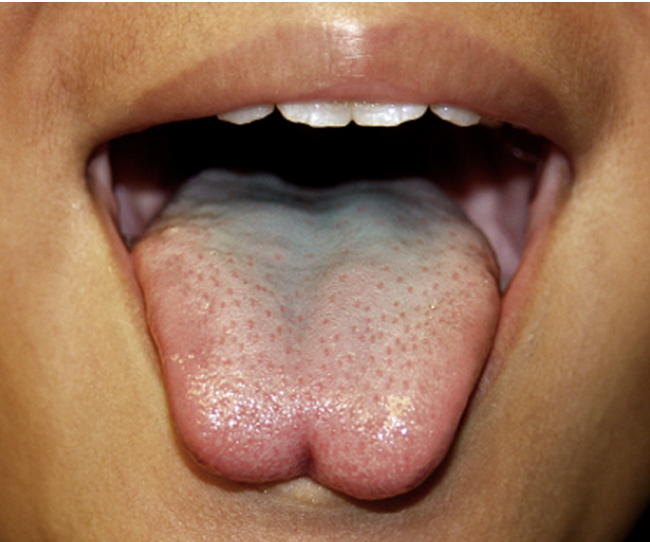 """What is tongue-tie? - It depends who you askClassic tongue-tie has the following characteristics:The tongue is tethered to the base of the mouth by a band of tissue which runs towards the tip of the tongueThe tongue can't reach the inside of the lipsThis may cause issues with breast feeding, dental care and how words soundIt does not cause speech delayEven if there is a """"notch"""" in the tip of the tongue (see image) it may not affect how the tongue worksThe natural, elastic tissue may stretch over time and """"fix"""" itselfIt is not how it looks, it is how it works that matters"""