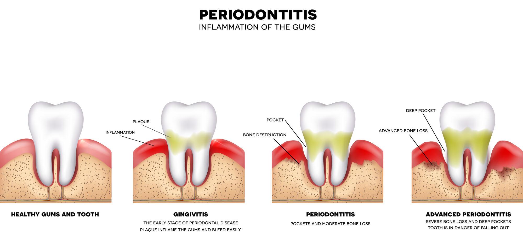 gum-disease-stages.jpg