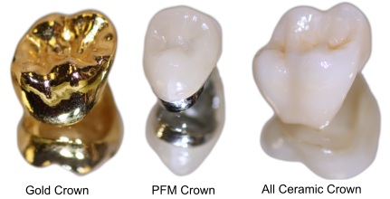 materials-for-dental-crowns.png