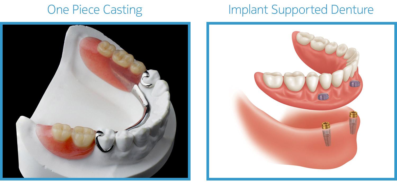 service-prosthodontics-02.jpg