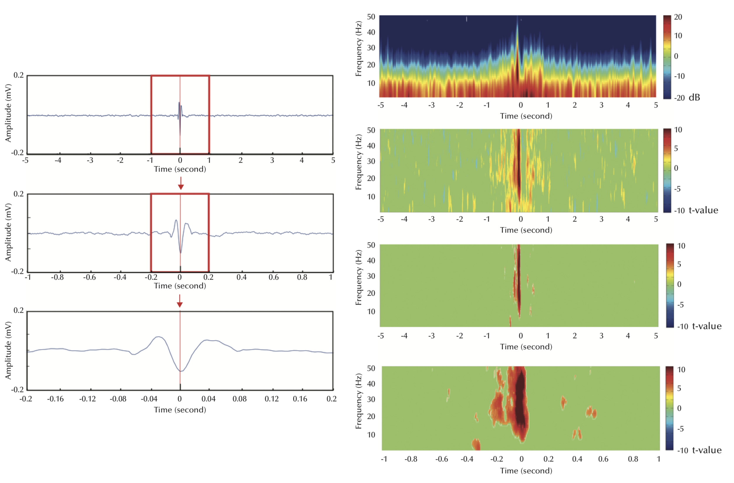 Steps implemented in averaging and interval outcomes: averaging of 100 jerks from Pz in the time domain (left) and time- frequency space (right). Left: three different time bases: 10, 2, and 0.4 seconds (from upper to lower); the red line marks the time at onset of clinical myoclonic jerks; the spike preceding the muscle jerks is easily discernible.  Right: results of signal averaging in the spectral domain (upper), and then after applying statistical transformation (second from top) and correction of multiple comparisons by FDR (lower two). We used a 10 second window (second from bottom) to illustrate the effectiveness of FDR correction on eliminating accidental detections far from seizures, due to magnification of alpha errors and multiple comparisons.