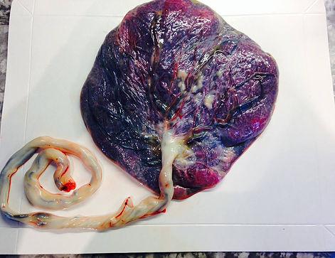 Pensacola placenta encapsulation