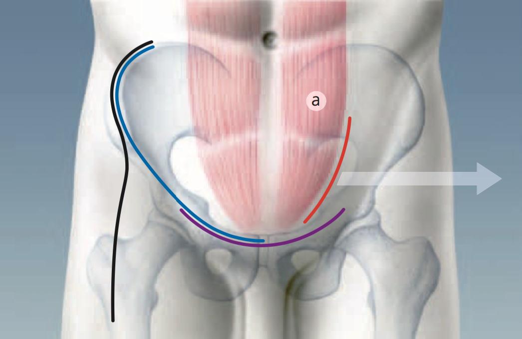 (Abb. 1) Lage der verschiedenen vorderen Zugänge zur Hüftgelenkspfanne: «Iliofemoraler» Zugang nach Smith-Petersen (schwarze Linie); «Ilioinguinaler» Zugang nach Letournel (blaue Linie); «Stoppa»-Zugang (violette Linie); «Pararectus»-Zugang nach Keel (rote Linie), entlang des Musculus rectus abdominis (a)