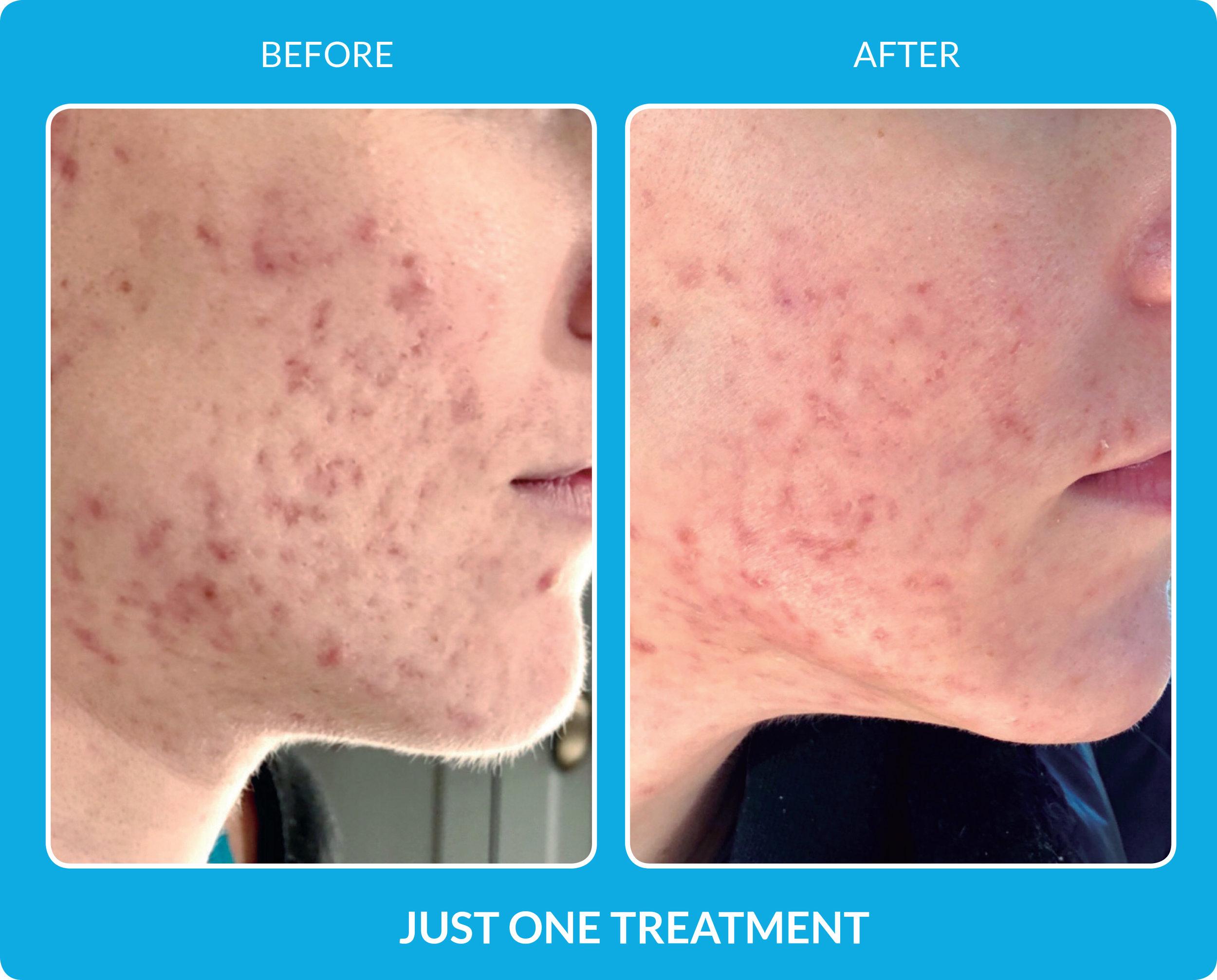 Acne Scars - One treatment.jpg