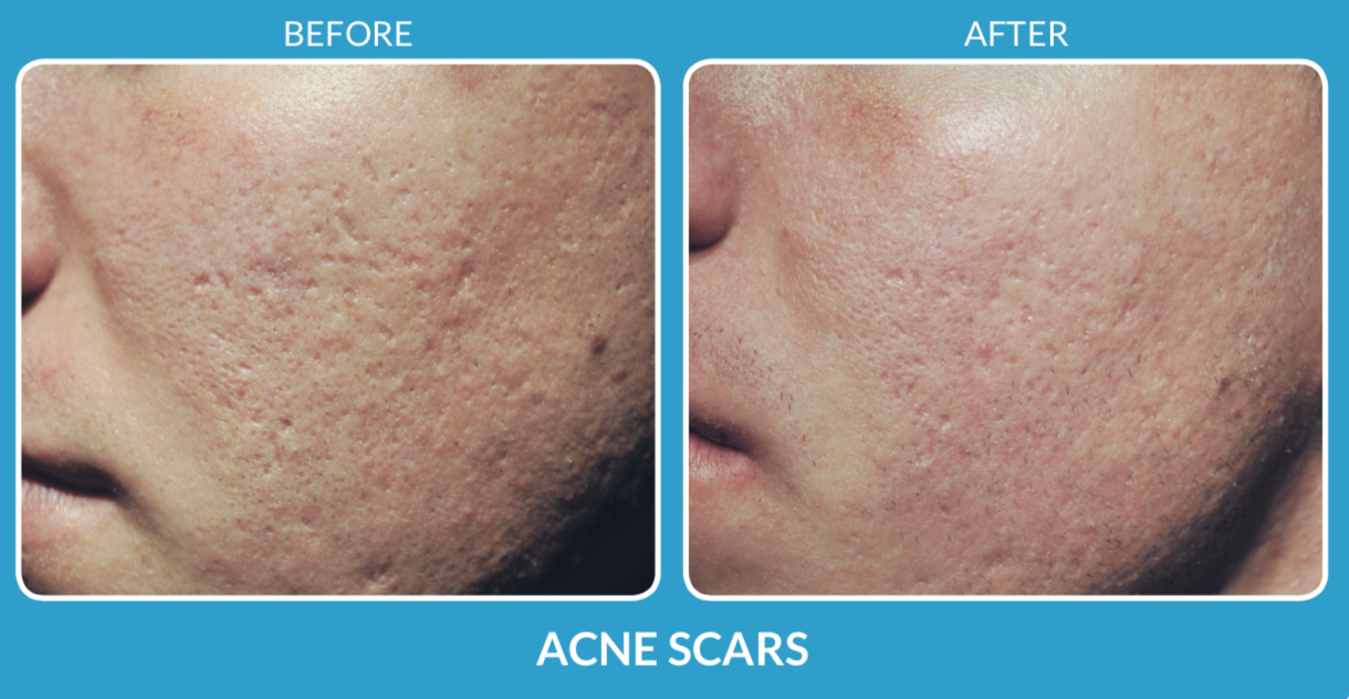 Acne Scars .png