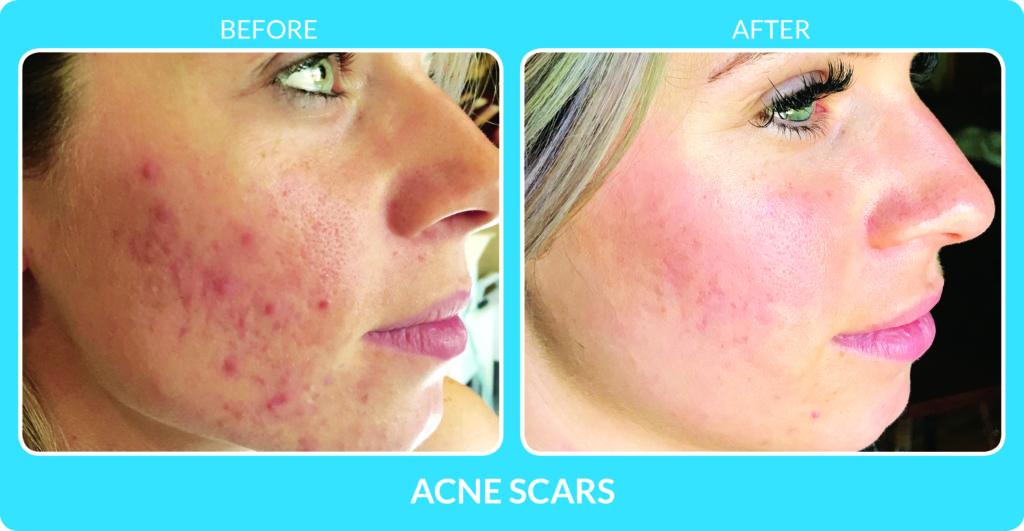 Acne Scars 3.jpg