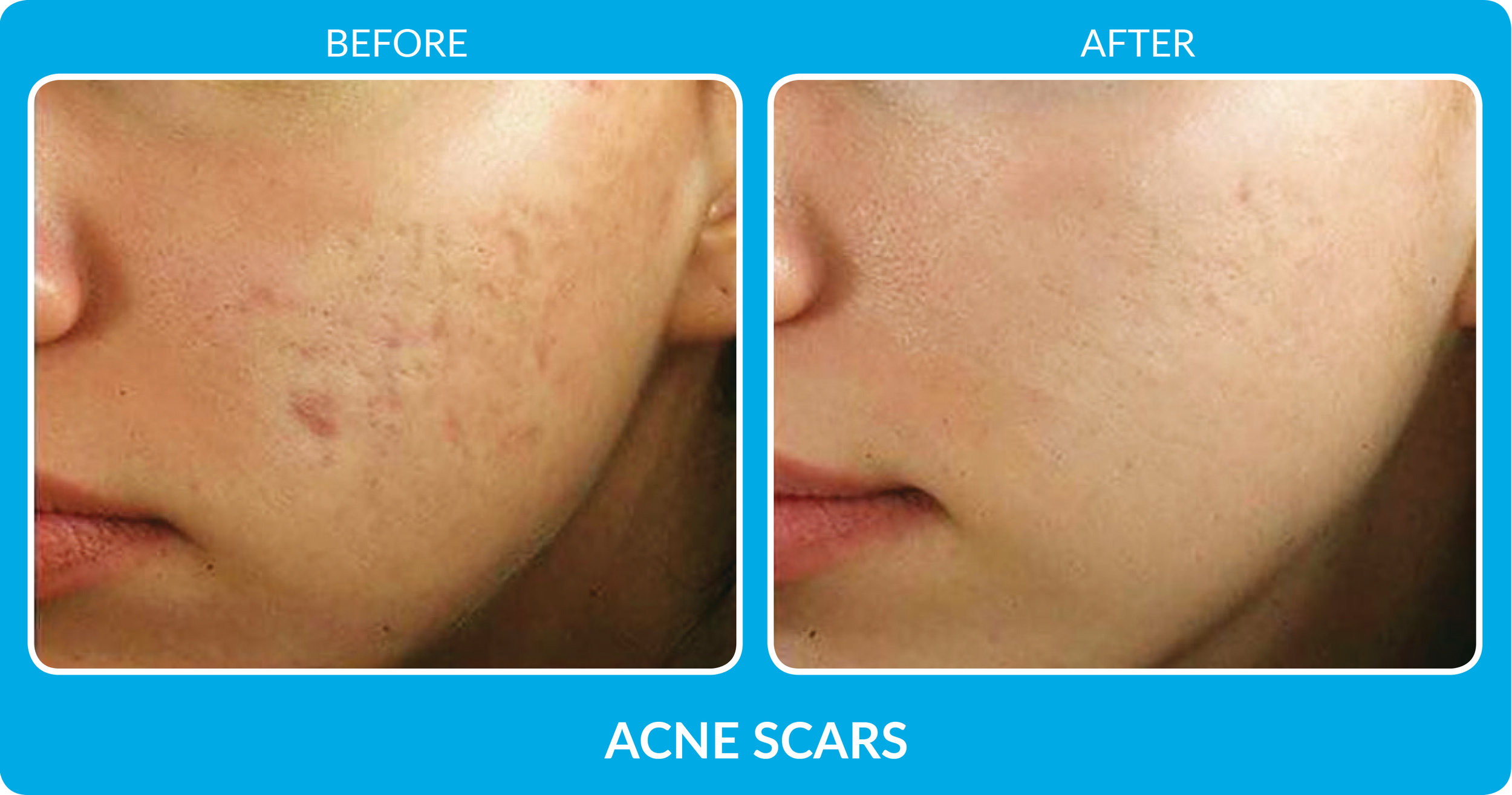 Acne Scars 2.jpg