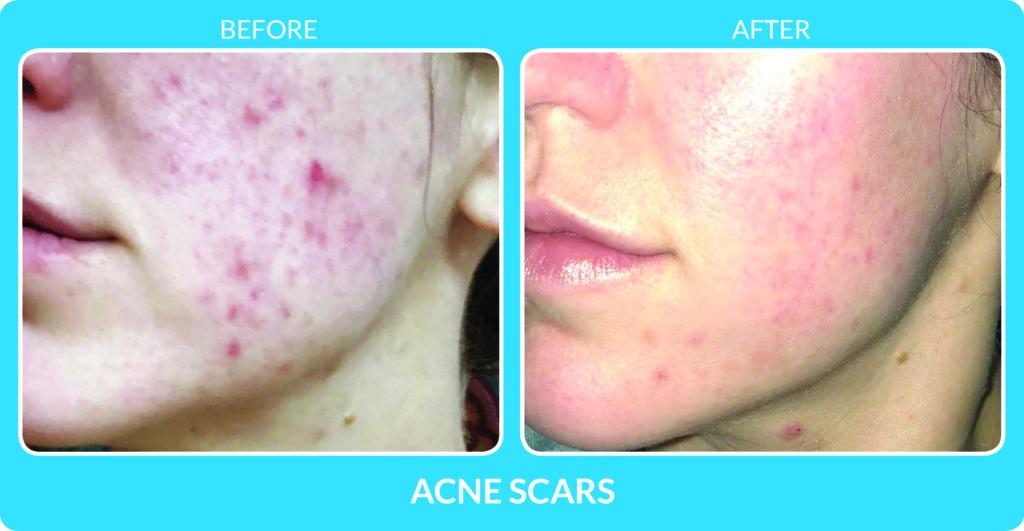 Acne Scars 5.jpg