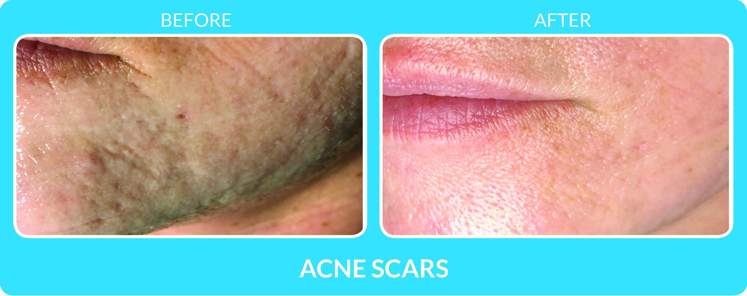 Acne Scars 4.jpg