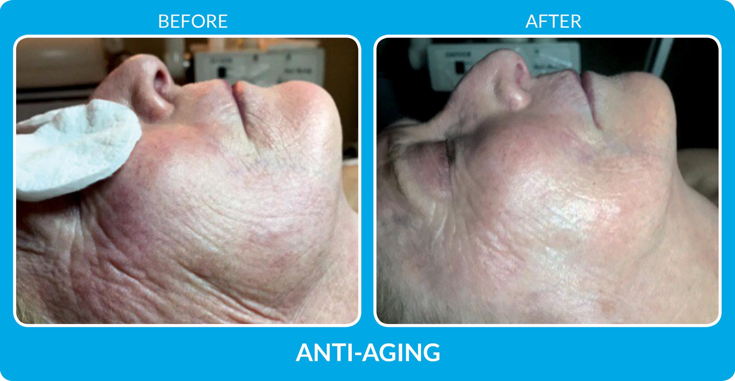 Anti Aging 2.jpg