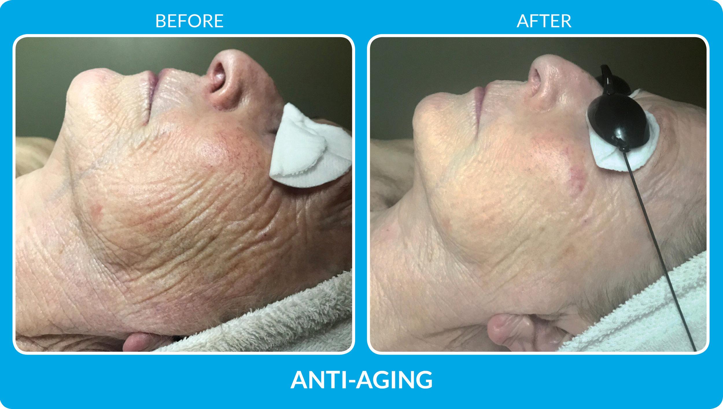 Anti Aging 3.jpg