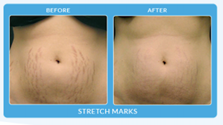 Body - Stretch Marks.png