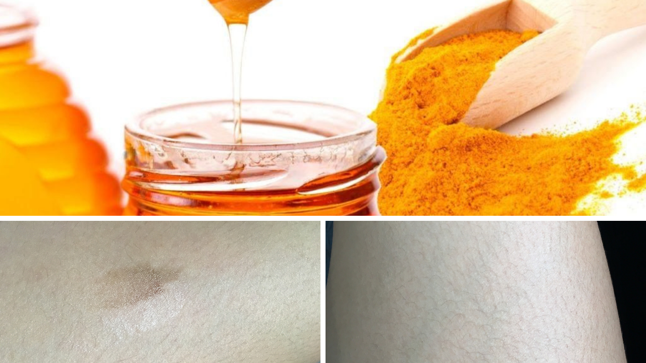 SAY GOODBYE TO OIL BURN AND SCARS! - and hellooo DIY home remedy (your new bestfriend). Try it on your scars and see how your skin transforms!Find out more ⟶