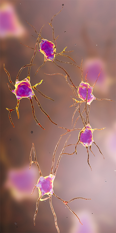 brain neurons 400px.jpg