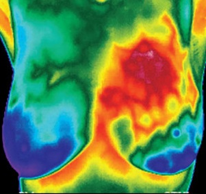 Thermography-419x330.jpg