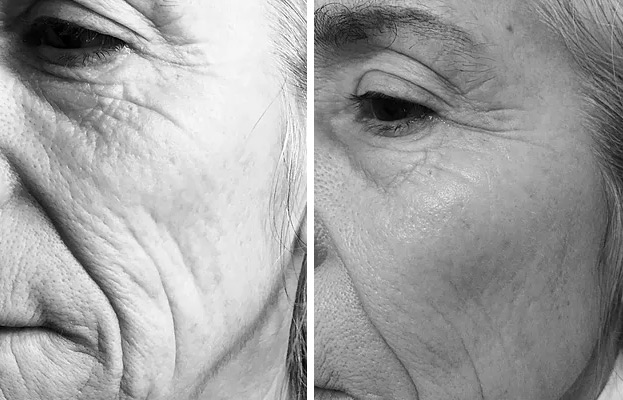 Before: Deep wrinkles, fine lines                      After 6 treatments: Fine lines have been                                                        eliminated,wrinkles are less deep, skin is more plump