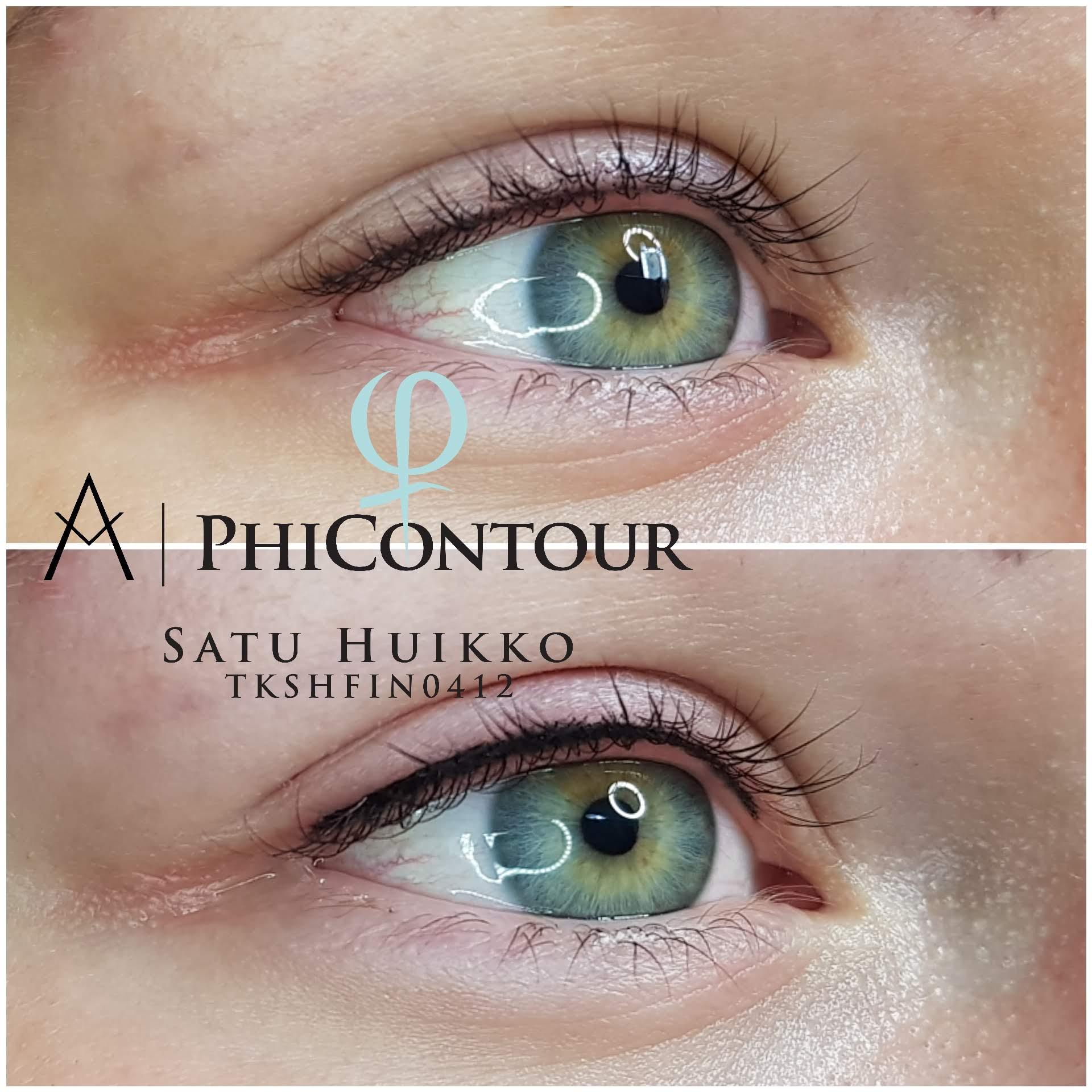 Silmänrajauspigmentointi yläluomella ennen jälkipigmentointia ja heti jälkipigmentoinnin jälkeen.  Luonnollinen eyeliner pigmentointi korostaa kauniisti silmän muotoa myös heti käsittelyn jälkeen. Mitä paksumpi rajaus tehdään, sitä enemmän silmäluomi yleensä turpoaa.