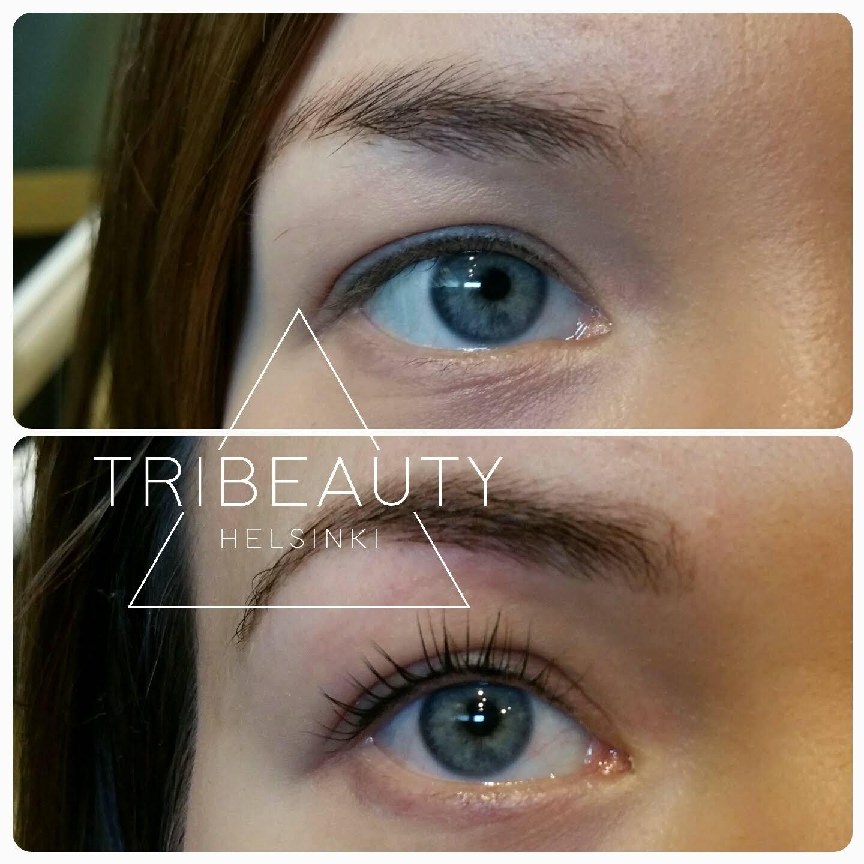 Ylemmässä kuvassa eyeliner pigmentointi yläluomella parantuneena kahden käsittelyn jälkeen. Alemmassa kuvassa lisäksi ripsien kestotaivutus Yumi-tekniikalla tehtynä ja ripsien kestovärjäyksellä sekä kulmien värjäys ja muotoilu.