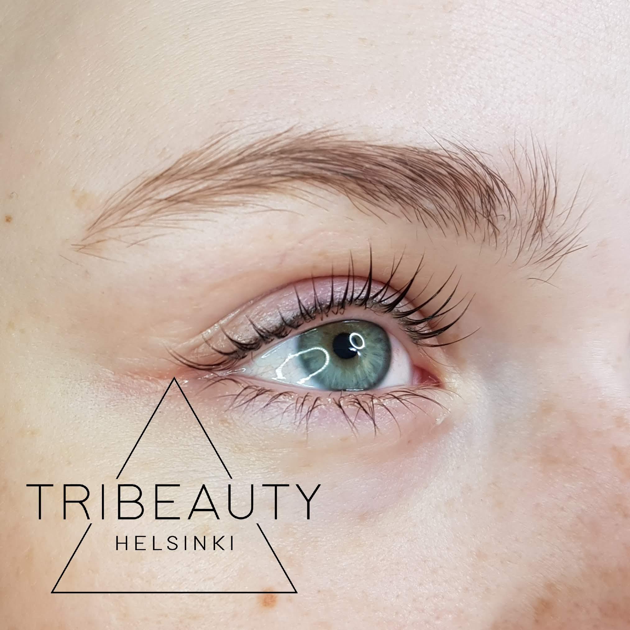 3 vuotta aiemmin tehty eyeliner pigmentointi yläluomella. Väri ei ole levinnyt tai muuttunut sinertäväksi, vaikka selvää haalistumista näkyy.