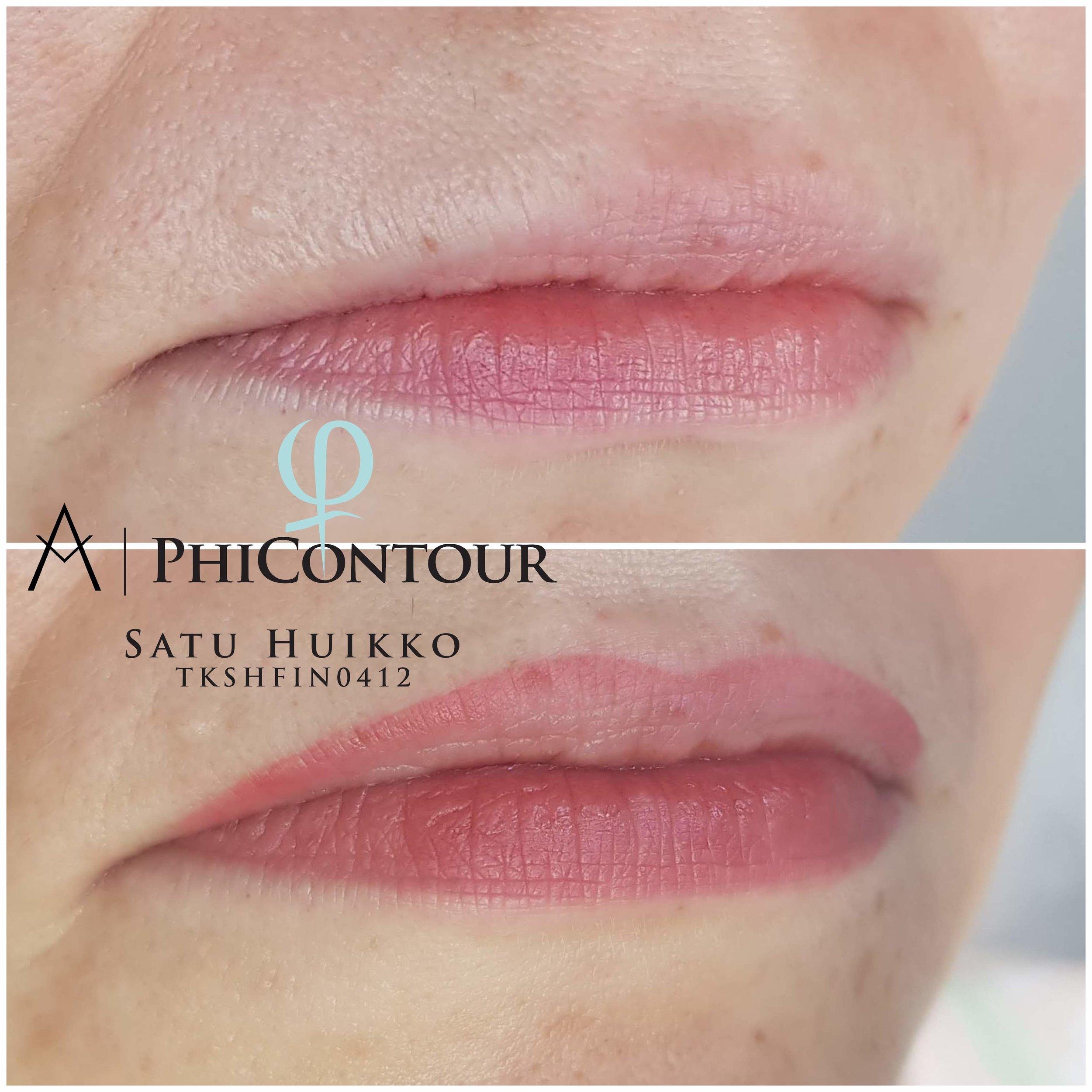 Huulten pigmentointi ombre -tekniikalla. Parantunut työ ennen jälkipigmentointia. Väri valittiin mahdollisimman lähelle alahuulen väriä, jotta luonnollisia värieroja pystyttiin tasoittamaan. Häivytystä lisättiin vielä kohti huulen sisäosaa jälkipigmentoinnissa.
