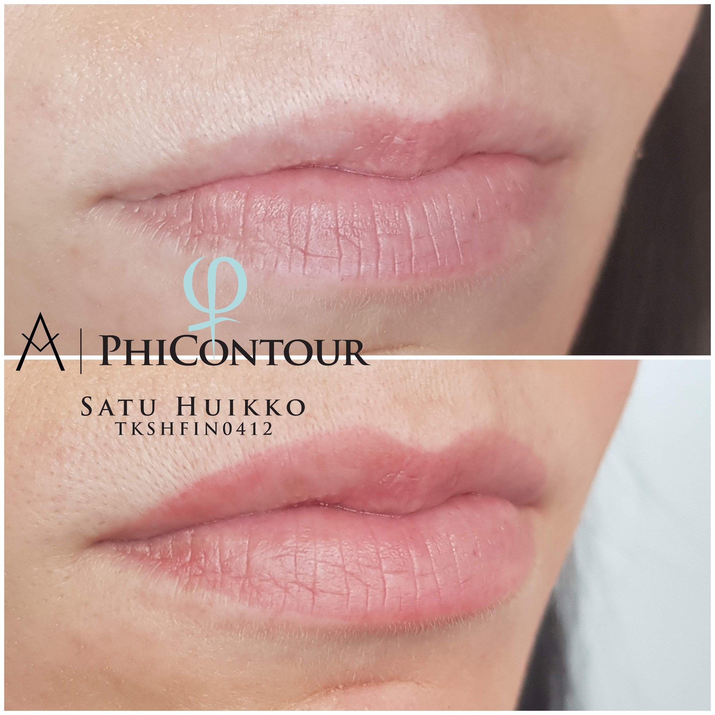 Parantunut huulipigmentointi häivytystekniikalla ennen jälkikäsittelyä.
