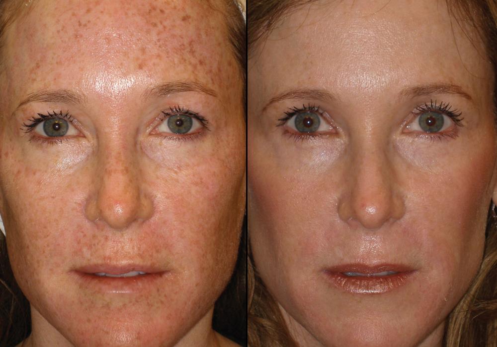 BBL Skin Rejuvenation; Pigmentation & Sun Damage