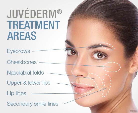 juvederm-treatment-areas.jpg