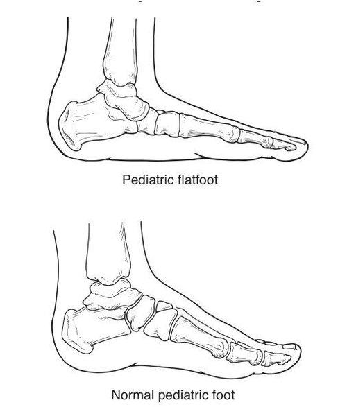 70279d30ae633 Pediatric Flat Foot — Milestone Pediatric Therapy