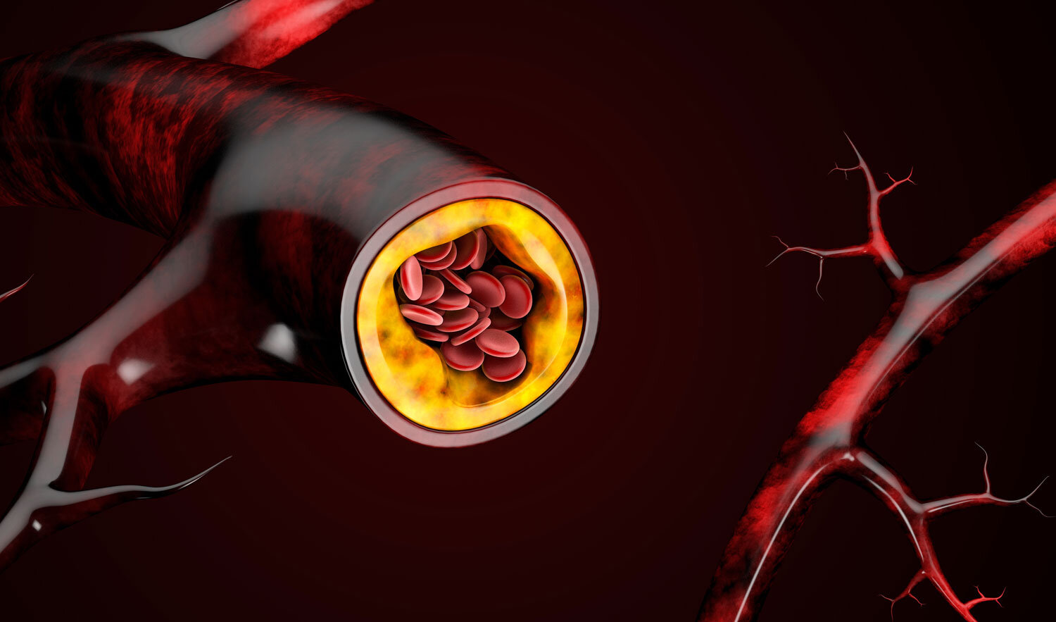 Plaque build up of cholesterol