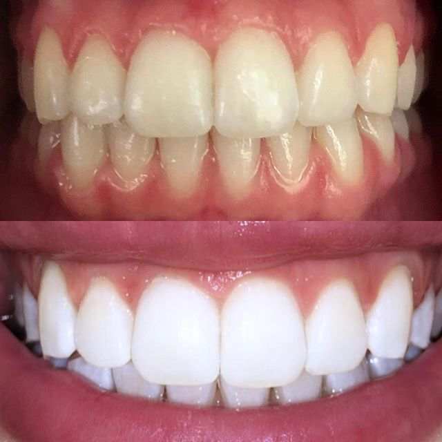 Before & straight after results achieved by our #tripletreatment  Technician: K I M B E R L Y ✨ #sparklingwhitesmile #swsadelaide #teethwhitening