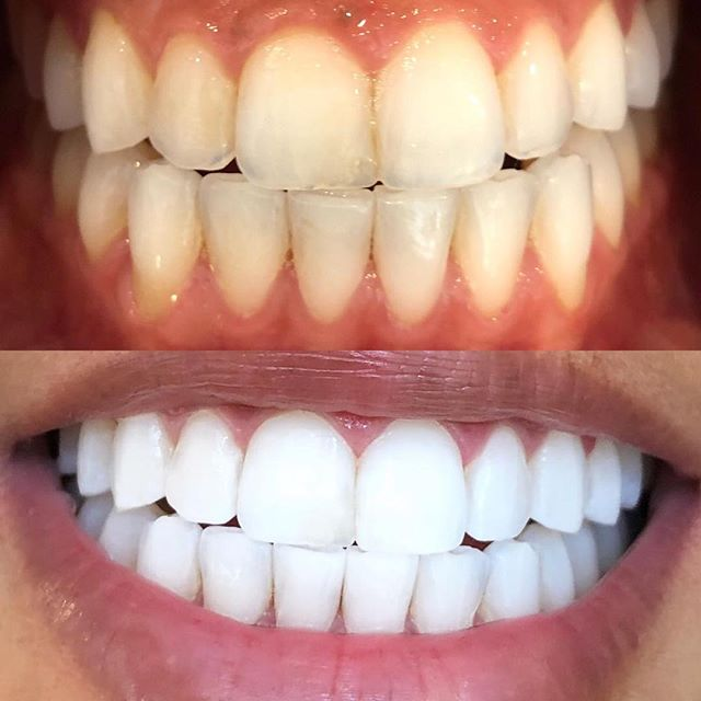 Today's results achieved by our #tripletreatment 🔥🔥 Technician: J E S S ✨ #sparklingwhitesmile #swsnorthsydney #teethwhitening