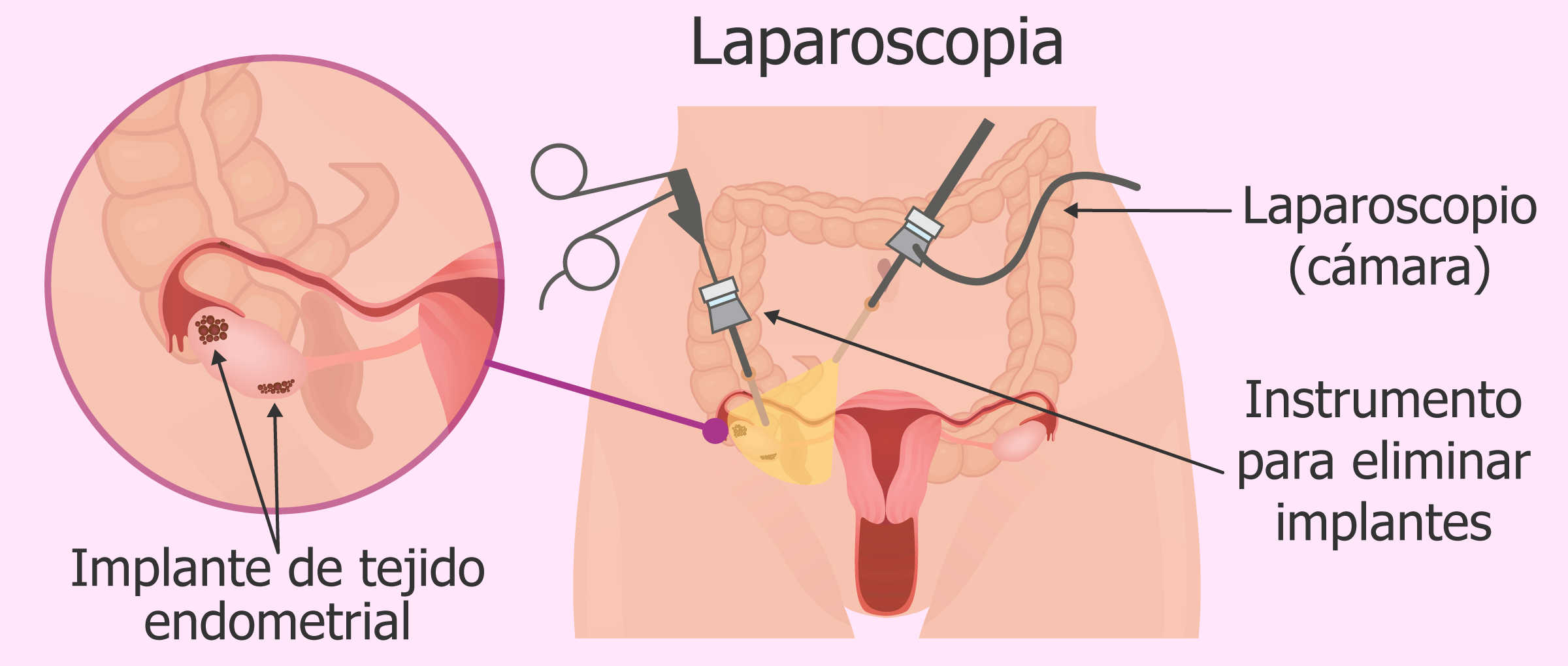 laparoscopia-para-diagnosticar-endometriosis-y-eliminar-implantes-endometriales.png