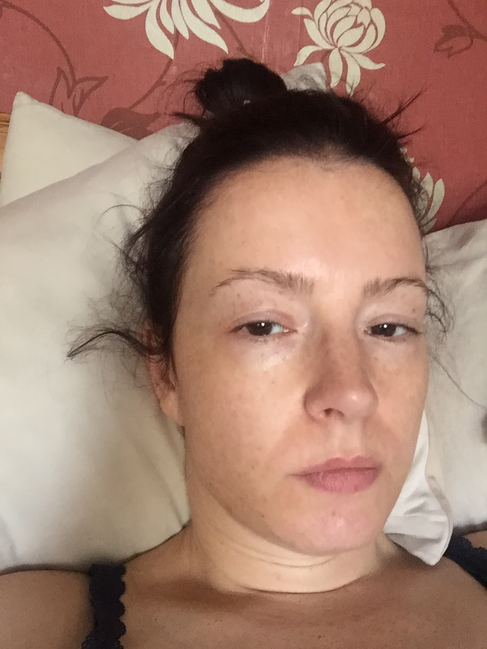 Anne Bryant looking very ill during ME CFS crash